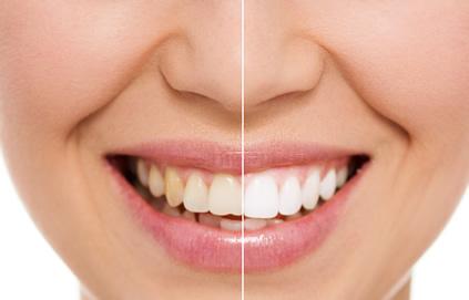 Lamounier Odontologia